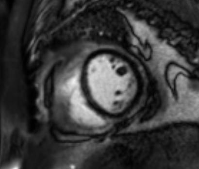 Effusive Constrictive Pericarditis