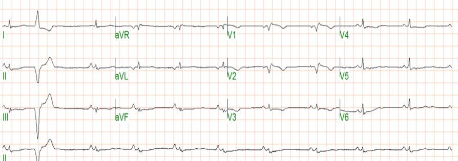 Arrhythmogenic right ventricular cardiomyopathy (ARVC)